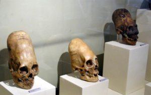 Paracas Skulls (Photo source: Wikimedia Commons)